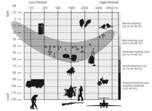 Hearing chart - where speech and environmental sounds are accessed